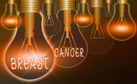 Text sign showing Breast Cancer. Business photo text disease in which cells in the breast grow out of control Realistic colored vintage light bulbs, idea sign solution thinking concept