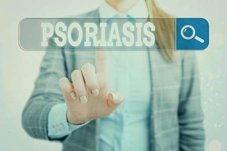 Word writing text Psoriasis. Business photo showcasing chronic skin disease characterized by patches with white scales Web search digital information futuristic technology network connection