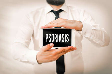 Writing note showing Psoriasis. Business concept for chronic skin disease characterized by patches with white scales Model displaying black screen modern smartphone mock-up
