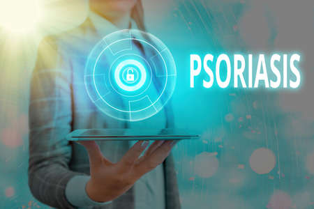 Text sign showing Psoriasis. Business photo text chronic skin disease characterized by patches with white scales Graphics padlock for web data information security application system