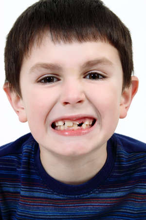 Young boy grimacing and showing off his missing milk tooth Stock Photo