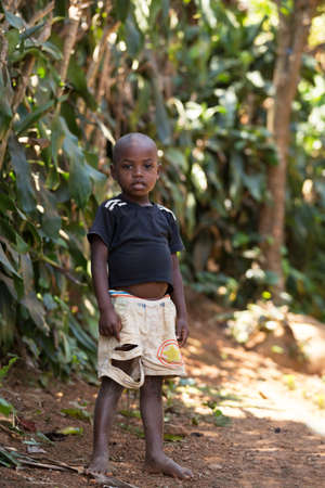 MADAGASCAR OCTOBER 17.2016 Portrait of malagasy boy in torn clothes, Toamasina Province, October 17. 2016, Madagascar, Africa Editorial