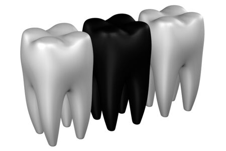 periodontal disease: Human teeth, isolated on white background. 3D rendering.