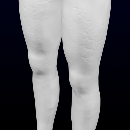 3d womans legs with cellulite on black and dark blue background. 3D rendering. Imagens
