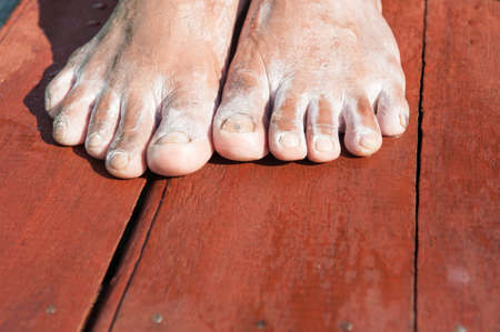 foot fungus: closeup of a foot with arthritis, damaged nails because of fungus and athletes foot