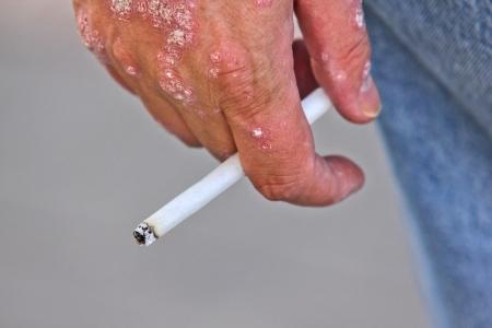 Person mit Psoriasis auf seine Hand, eine brennende Zigarette zwischen den Fingern, closeup