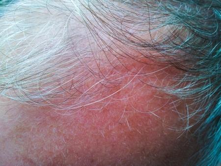 Nahaufnahme der Person mit grauem Haar, Glatzenbildung