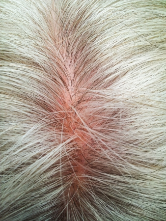 Closeup of person with grey hair, balding