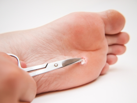 Person with callus located under foot, treated with a pair of scissors