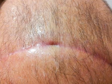 Macro of scar on head under hair stubs