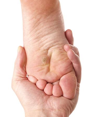 Hautarzt untersucht ein Fuß für Kallus und trockene Haut, Richtung weiß