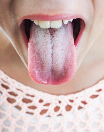 舌: 突出の舌に白いプラーク人の若い女性