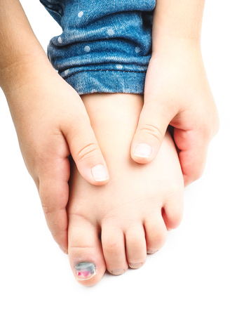 big toe: Girl holding onto her foot with a blue nail on the big toe after injury Stock Photo