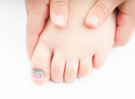big toe: Little girl holding onto  her foot with an injured big toe, showing blue nail on the hallux, with a tiny bit of pink pedicure left
