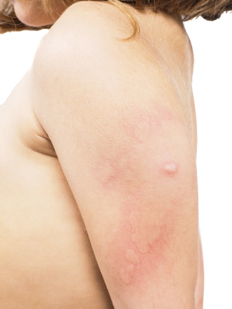 Child with hive, rash, or some skin abnormality towards white Stock Photo