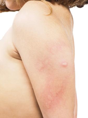 Kind mit Bienenstock, Ausschlag, oder einer Hautanomalie in Richtung weiß
