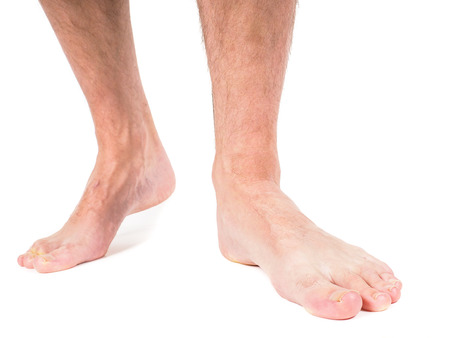 Male person with hairy legs, walking barefooted towards, against white background Standard-Bild