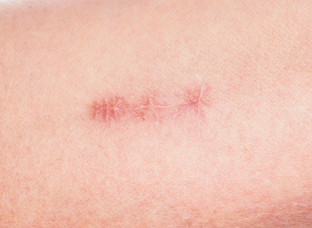 flesh surgery: Closeup of redness around healing stitches on skin Stock Photo