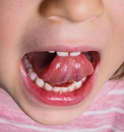 lengua afuera: Niña con camiseta rosa que sobresale la lengua hacia atrás con muchos dientes blancos