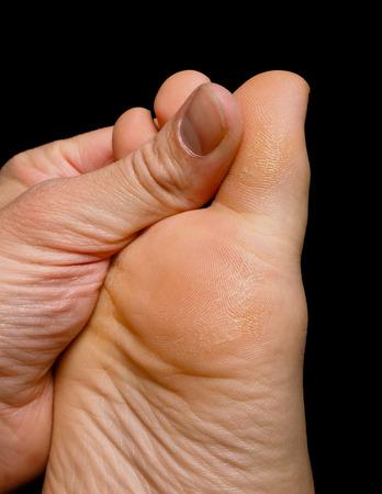 Thumb pressure on big toe massage on dry skin isolated towards black Archivio Fotografico