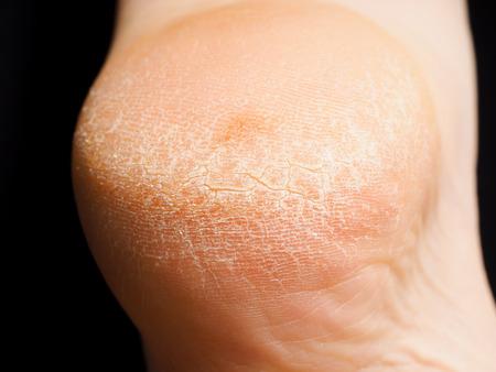 Closeup of cracked dry skin on heel isolated towards black