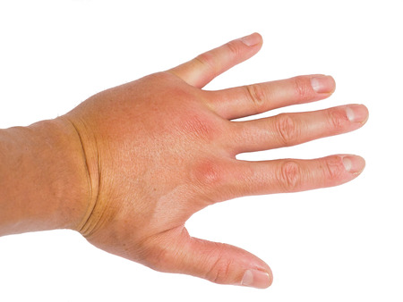 swell: Male person showing swollen knuckles on left hand isolated on white Stock Photo