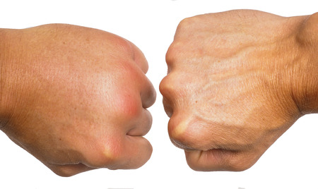 ホワイト バック グラウンドに向かって分離腫れた男性白人の手を比較します。 写真素材