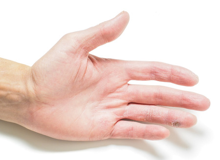 Finger with infected cut, on hand with dry skin, towards white with shadows