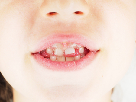 Young caucasian girl child with protruding primary tooth at closeup of open mouth Standard-Bild