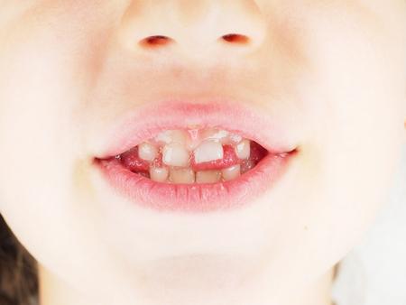 Junges kaukasisches Mädchenkind mit dem vorstehenden Primärzahn an der Nahaufnahme des offenen Mundes