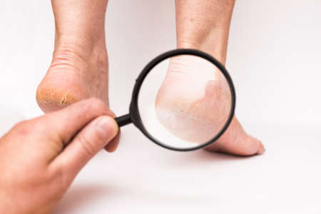 Closeup Highly dry heels woman on a white background through a magnifying glass.The doctors hand checks on how much cracked the skin is.