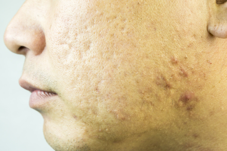 Nahaufnahme von problematische Haut mit tiefen Aknenarben auf Wange, schwerer Akne, Mädchen mit problematischer Haut und Akne-Narben, Akne, weil die Störungen der Talgdrüsen Produktionen, Akneverletzungen des Menschen Gesicht. Standard-Bild