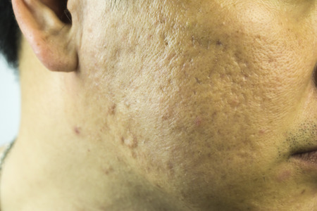 lesions: Close up of problematic skin with deep acne scars on cheek,Severe Acne,Girl with problematic skin and acne scars,Acne because the disorders of sebaceous glands productions,Acne lesions of man face.