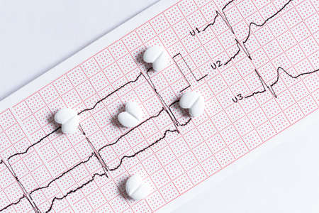 Tablets in the form of hearts lie on the printout of the cardiogram. Closeup.