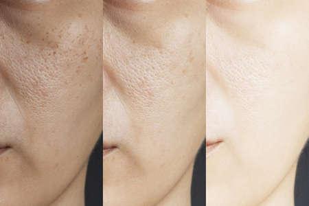 drei Bilder verglichen die Wirkung vor und nach der Behandlung. Haut mit Problemen von Sommersprossen, Poren, stumpfer Haut und Falten vor und nach der Behandlung zur Lösung von Hautproblemen für ein besseres Hautergebnis Standard-Bild