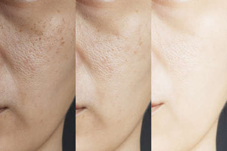 three pictures compared effect Before and After treatment. skin with problems of freckles , pore , dull skin and wrinkles before and after treatment to solve skin problem for better skin result Standard-Bild