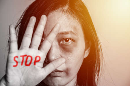stop violence against women campaign. Asia woman with bruise on arms and face raised her hand for dissuade, hand write the word STOP in red color.