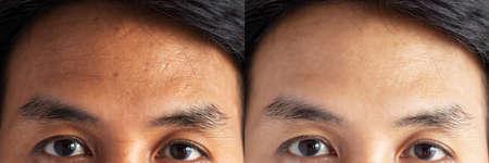twee foto's vergeleken effect voor en na de behandeling. huid met problemen van sproeten, porie, doffe huid en rimpels rond het voorhoofd voor en na de behandeling om huidprobleem op te lossen voor een betere huid
