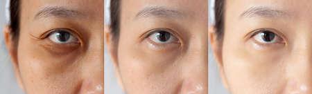 Tres imágenes compararon el efecto antes y después del tratamiento. debajo de los ojos con problemas de ojeras, hinchazón y arrugas periorbitales antes y después del tratamiento para solucionar el problema de la piel para una mejor piel Foto de archivo
