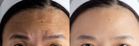 forehead wrinkles problem. pictures compared effect Before and After treatment for forehead wrinkles skin problem in woman to solve skin problem for better skin result