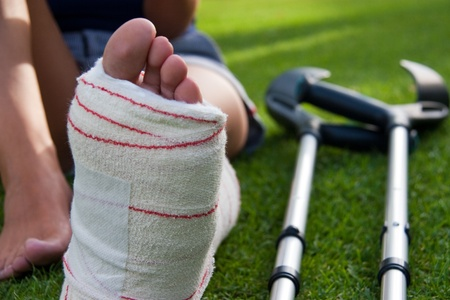 detail of the leg in plaster of a girl sitting on the grass and crutches in background