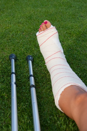 sprain: leg in plaster of a girl with polished fingernails and crutches on the grass Stock Photo