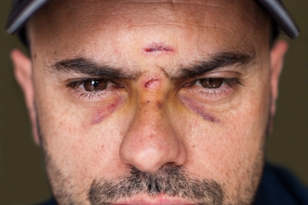 Face of an injured man with wounds and black eyes  Soft focus