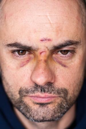 herida: Cara de un hombre herido con heridas y los ojos negros de enfoque suave Foto de archivo