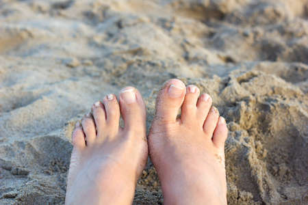 Webbed toes- birth defect. Close up of fused toes on an adult Caucasian female on the beach background. Hairy toes. syndactyly affecting the feet. Foot on sand. summer time. podiatric medicine