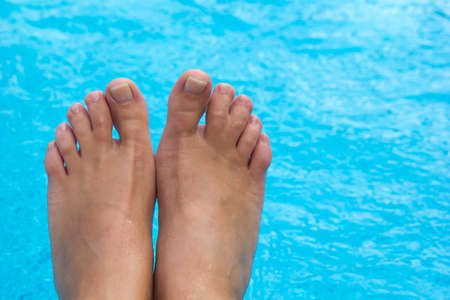 top view of female legs with fused middle toes on blue pool background. Webbed toes genetic disorders and syndrome, syndactyly of the toes. Special people.