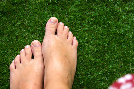 top view of female legs with fused middle toes on green grass background. Webbed toes genetic disorders and syndrome, syndactyly of the toes. Special people.