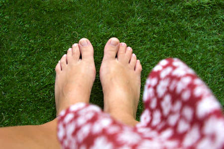 top view of female legs with fused middle toes on green grass background. Webbed toes genetic disorders and syndrome, syndactyly of the toes. Special people. Reklamní fotografie
