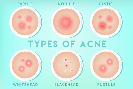 Acnetypes: whiteheads, mee-eters, puisten, papels, cysten, knobbeltjes