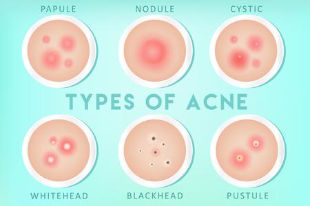Types d'acné : points blancs, points noirs, pustules, papules, kystes, nodules